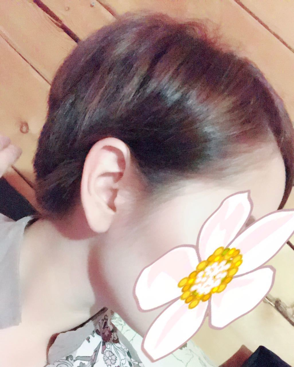 Девушке пришлось подстричь сожженные волосы