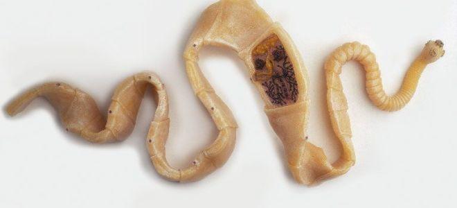 1472467b2_660x300 Якутяне не могут вылечиться от червей-паразитов из-за отсутствия препарата в Якутске